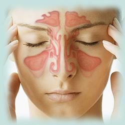 női arc, a fő fájdalmat okozó pontokkal megjelölve